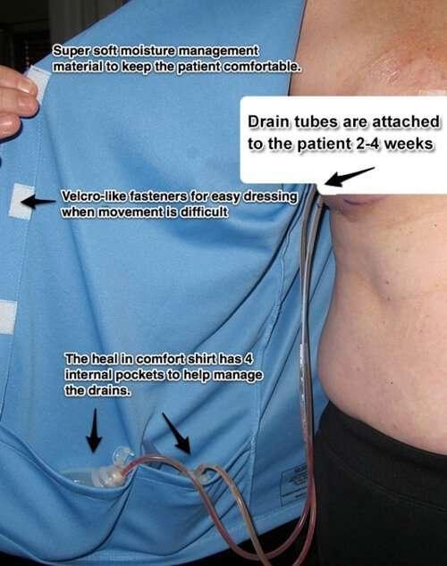 post-mastectomy-detail